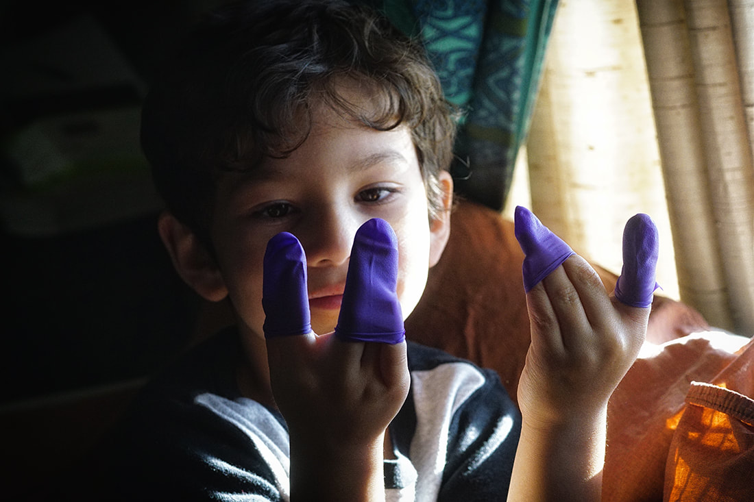 child with latex glove fingers
